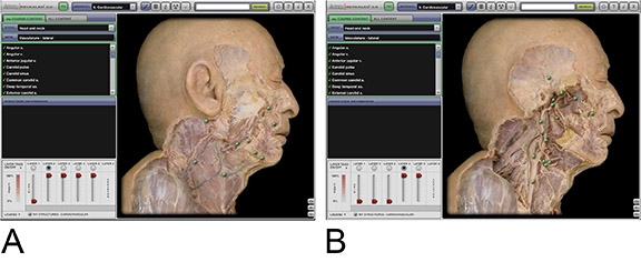 This cutting-edge computer simulation -- the Anatomy and Physiology Revealed (APR) multimedia learning system -- shows two lateral views of the cardiovascular system in the head and neck. Contributed image.